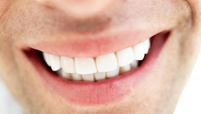 teeth-whitening_12204_268093849