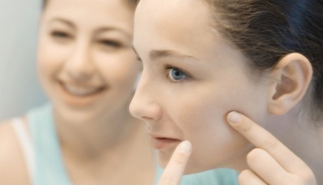 acne-scar-removal-treatment