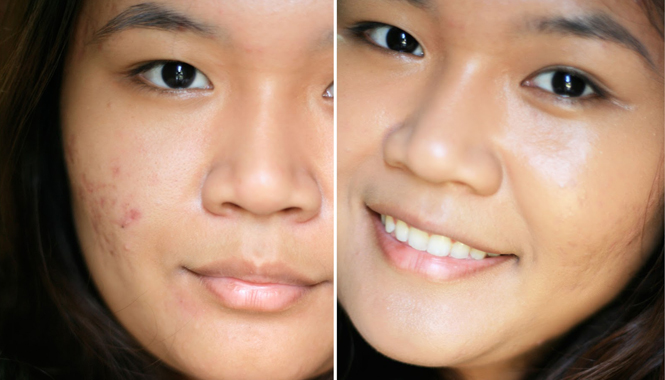 Cure Acne Scars Complete Guide